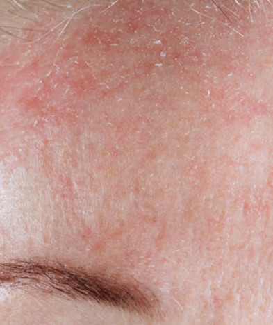 Rozacea, crvenilo lica, bubuljice, prošireni kapilari