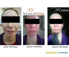 VENUS VIVA radiofrekvencija za napredne anti age tretmane lica i tijela